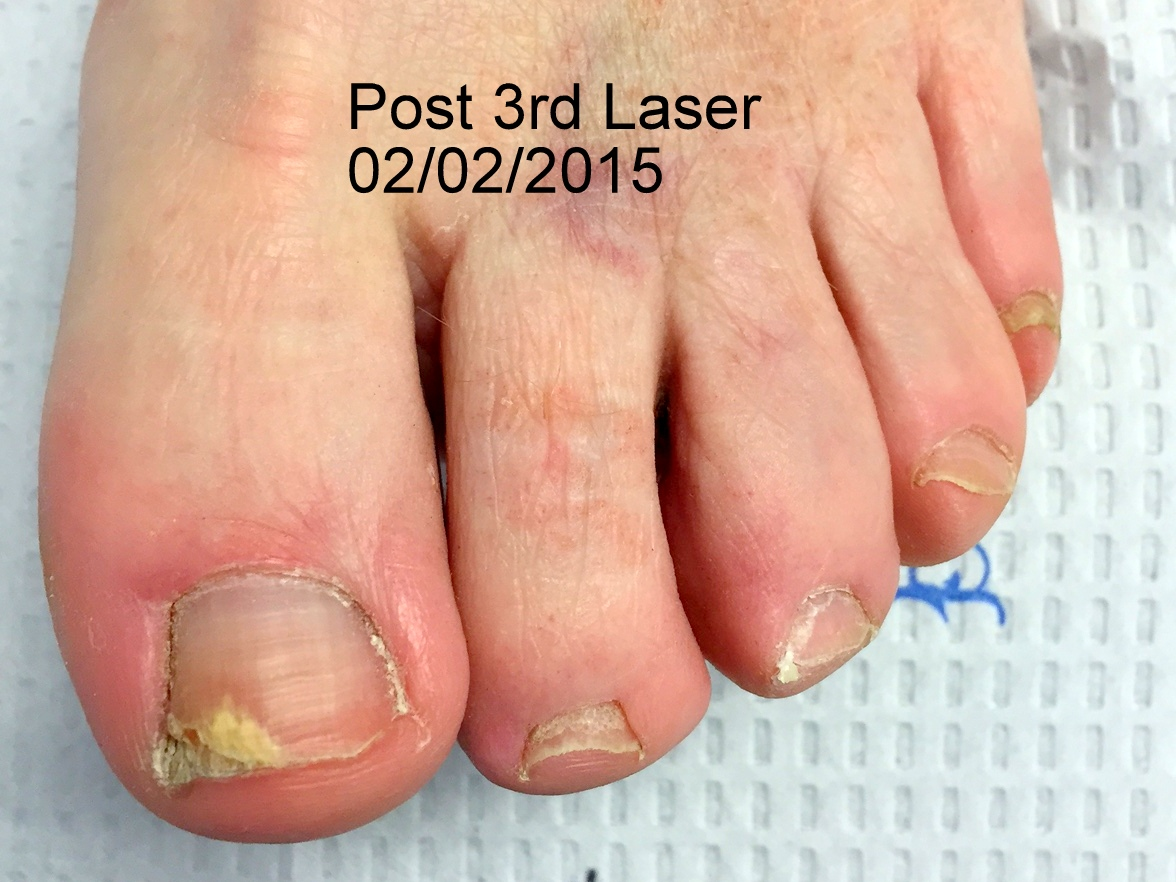 LASER FUNGAL NAIL TREATMENTS - Podiatrist in Gainesville, VA