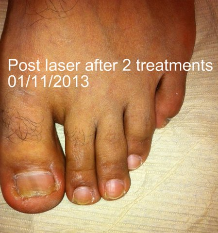 After nail fungus treatment
