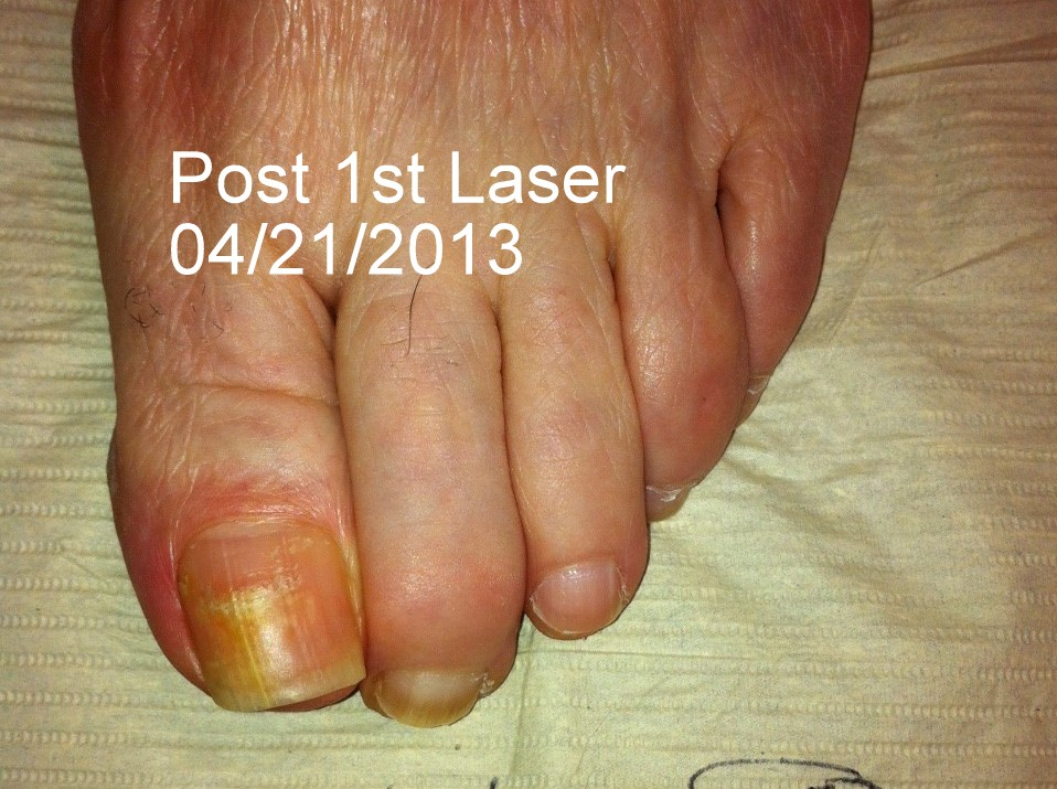 Nail fungus after treatment