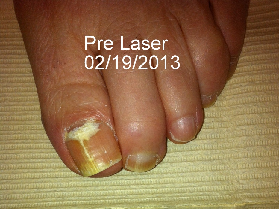 Nail fungus before treatment