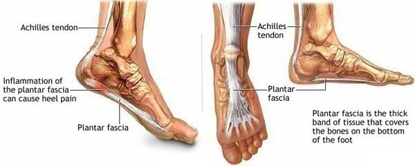 Heel Pain - Podiatrist in Gainesville, VA
