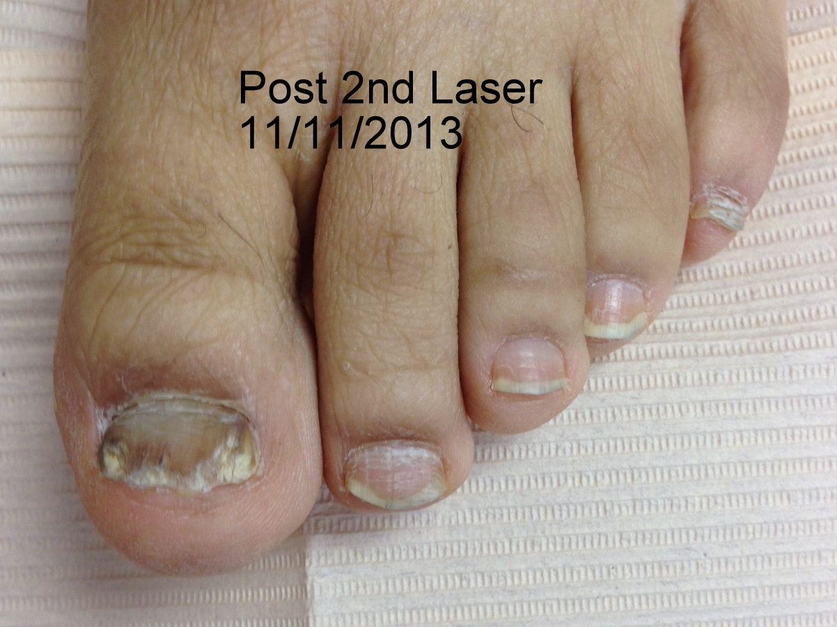Laser Fungal Nail Treatments Podiatrist In Gainesville Va