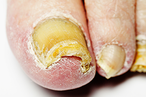 Get Rid Of Toenail Fungus With Laser Treatment - Podiatrist in ...