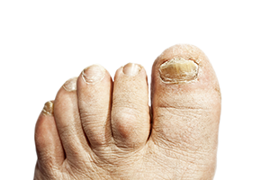 Toenail Treatment